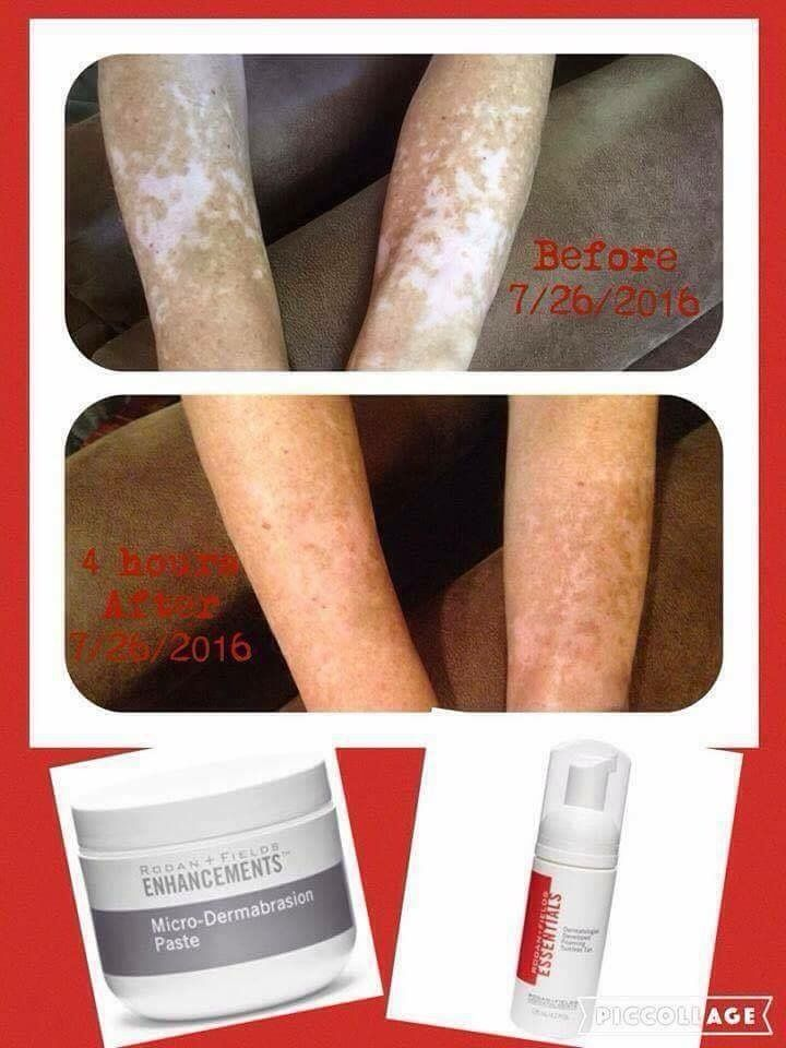It is results like this that make my heart swell! Changing Skin really can…