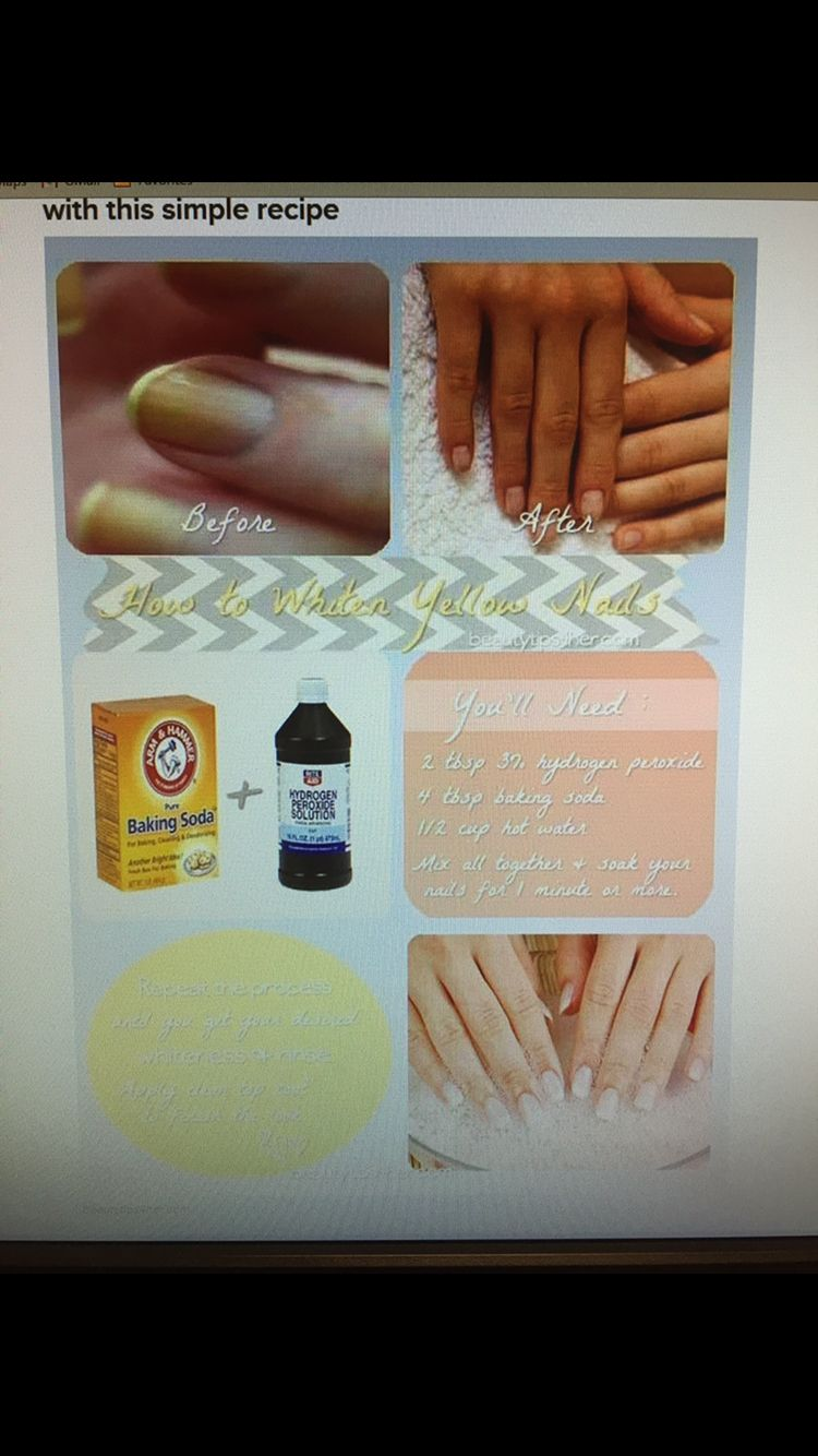 1e4c7c2861fb848998953c34dc8b549d - How To Get Rid Of Yellow Nails With Hydrogen Peroxide