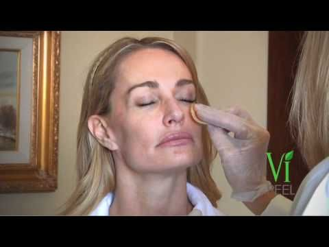"""The VI Peel: a procedure we offer that is safe, painless and will give you beautiful glowing skin as seen on """"Real Housewives of Beverly Hills"""" offered at Winter Park Laser in Orlando"""