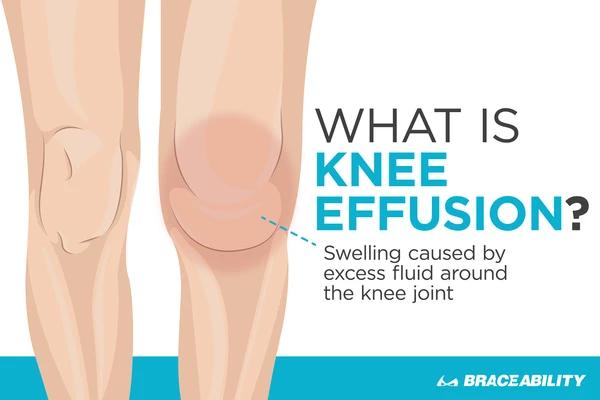 1e4f608d482662c627eab60ec166f43f - How To Get Rid Of Swelling And Fluid In Knee