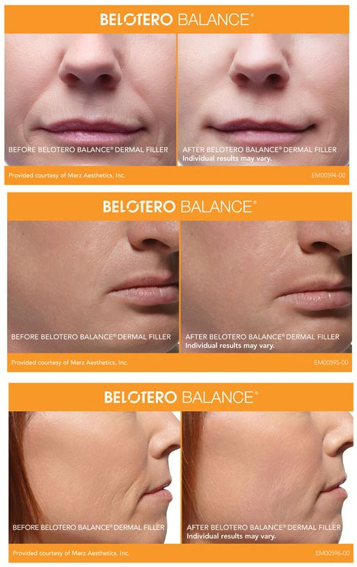 Belotero Balance Before And After Photos Call Carolina Laser Cosmetic Center In Winston Salem Nc To Schedule Your Co Dermal Fillers Balance Winston Salem