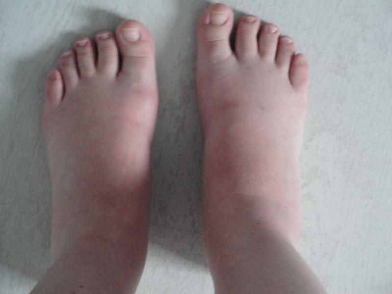 Syndrome de Raynaud: remède naturel - Syndrome de raynaud..