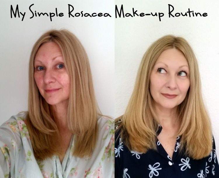 My Simple Rosacea Make Up Routine Confessions Of A Refashionista Rosacea Rosacea Skin Care Routine Rosacea Skin Care
