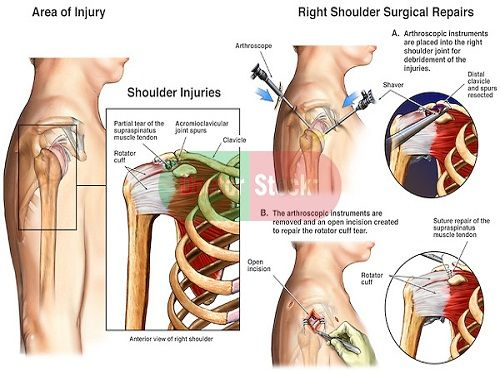 Shoulder Is Made Up Of Three Bones Your Upper Arm Bone Humerous