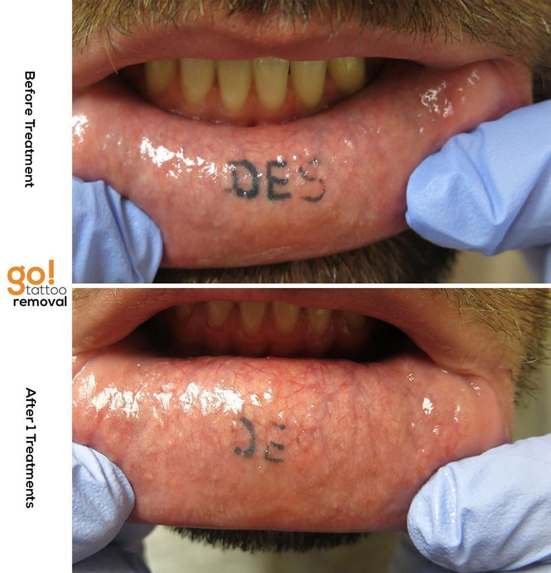 Inner lower lip tattoos rarely stay and often fade on