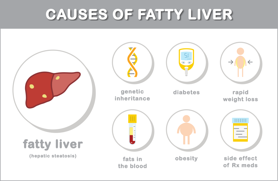 Fatty liver due to rapid weight loss