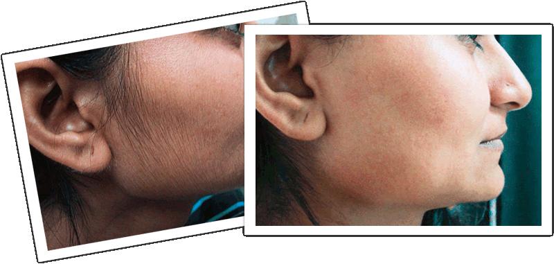 Stop facial hair growth in women