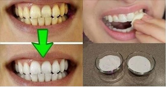 Pin By Hellenbaker On Teeth Whitening Cheap Pinterest Teeth And