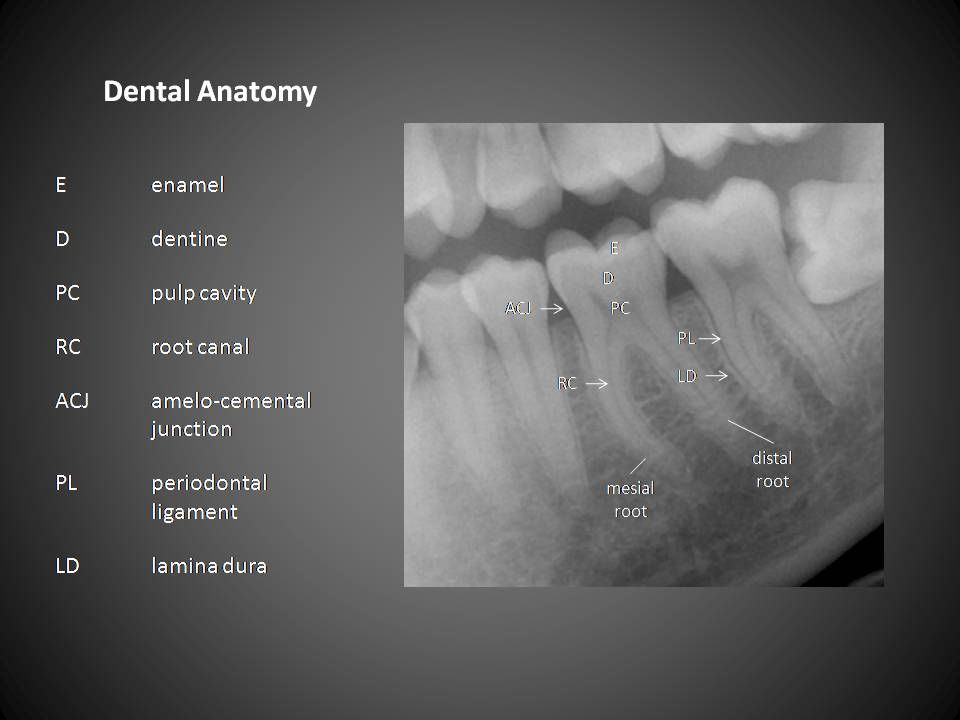 Dental anatomy www.DentalAssistantStudy.com | The studying Dental ...