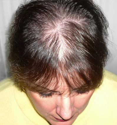 Treathairlossinwomen Com Thick Hair Remedies Hair Fall Cure Hair Loss Treatment
