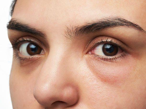Augenjucken Die 8 Haufigsten Ursachen Und Was Hilft Juckende Augen Augenringe Und Dunkle Augenringe