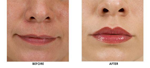 Restylane Side Effects   Kalia Dermatology & Laser Center ...