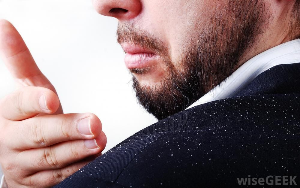Dandruff will flake off because its nothing but dead skin nits dandruff will flake off because its nothing but dead skin nits do not fall out ccuart Images