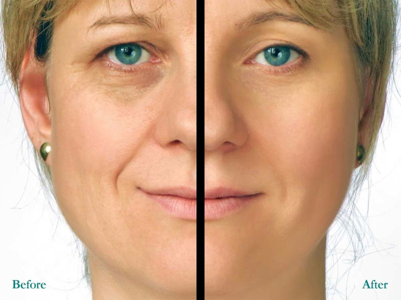 Your dermal fillers consultation during your dermal fillers your dermal fillers consultation during your dermal fillers consultation be prepared to discussyour goals solutioingenieria Gallery
