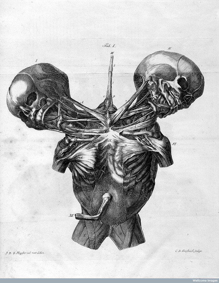 L0023731-700x902 | Anatomía | Pinterest | Ilustración médica ...