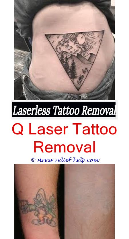 Laser tattoo removal tattoo removal cream south africa how to laser tattoo removal tattoo removal cream south africa how to remove my tattoo myself kits what equipments is needed remove a tattoo what solutioingenieria Gallery