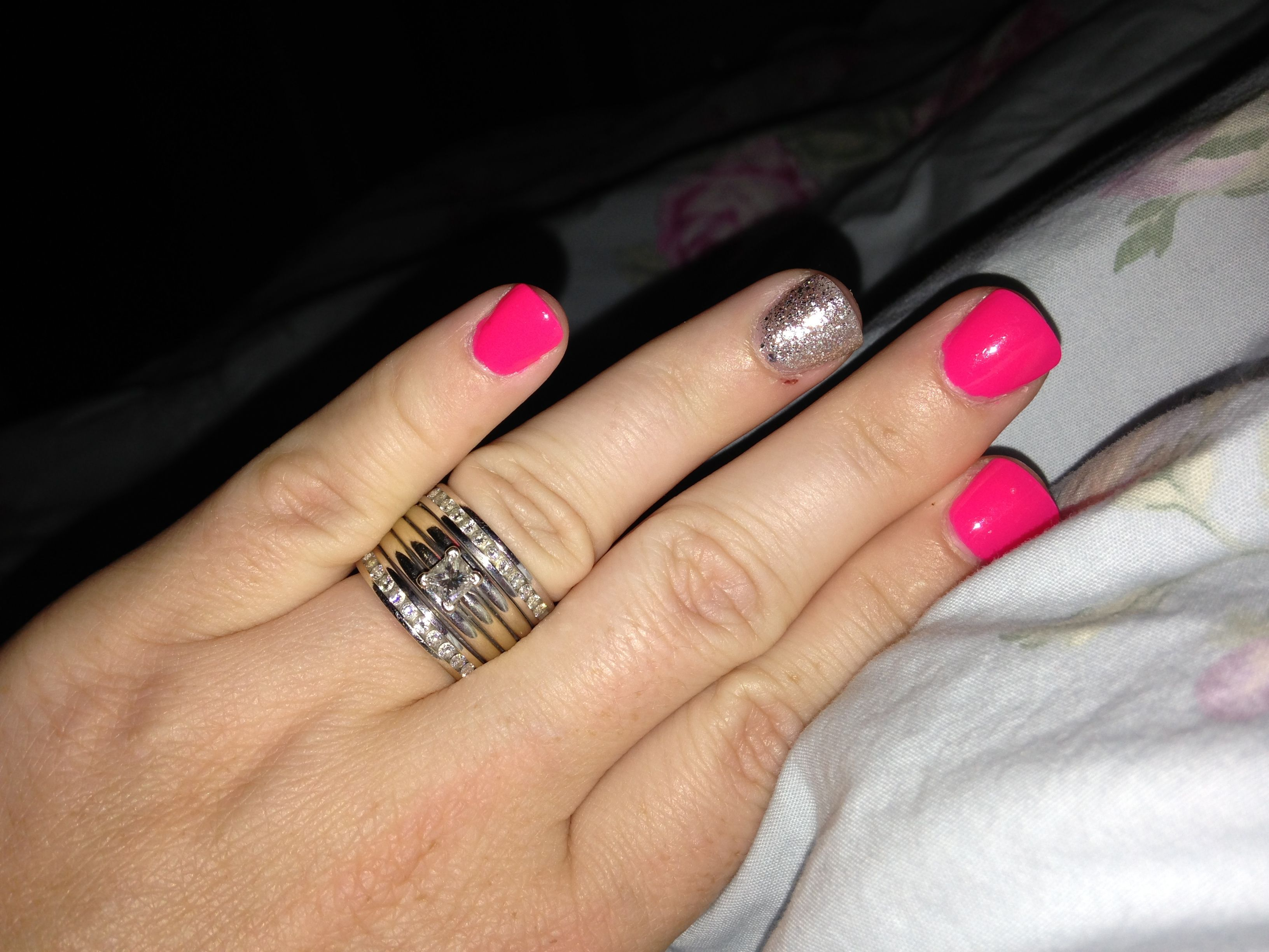 Super short acrylic nails. They can be fun, and not gross!! Just shorten them, and pick a super fun color combination!