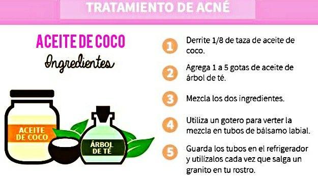Aceite de coco  Para el acné