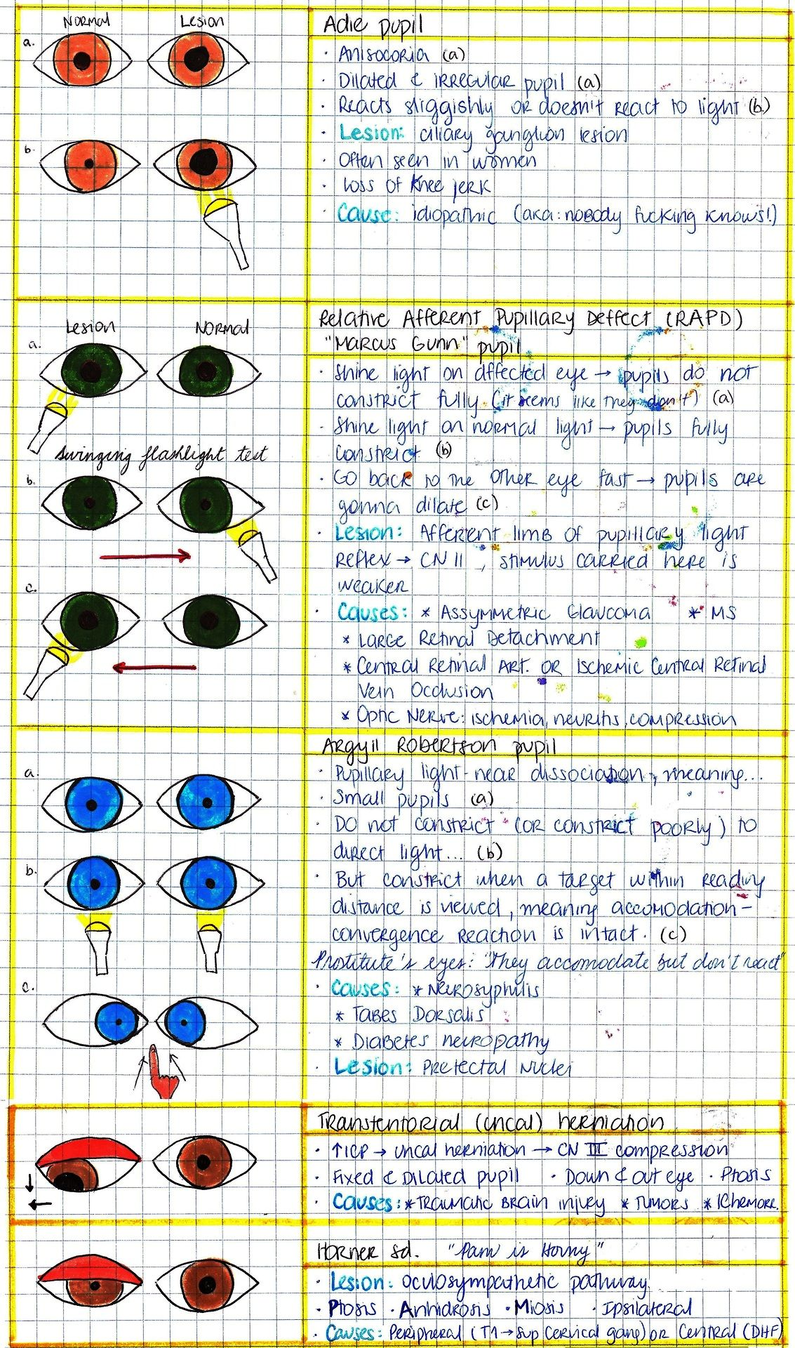 PUPILLARY ABNORMALITIES Optometry school, Optometry