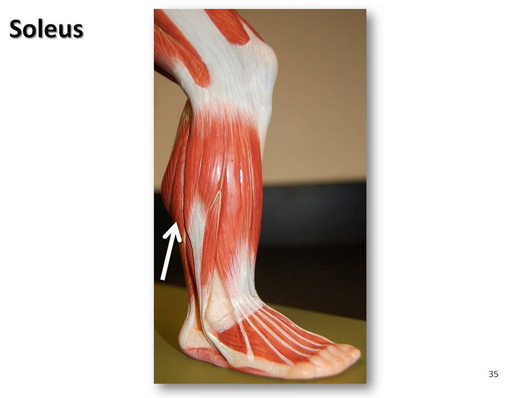 Soleus - Muscles of the Lower Extremity Anatomy Visual Atlas page 35 ...
