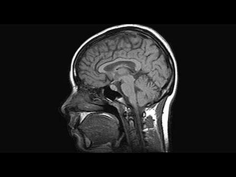 Científicos españoles logran revertir la pérdida de memoria en casos pre...