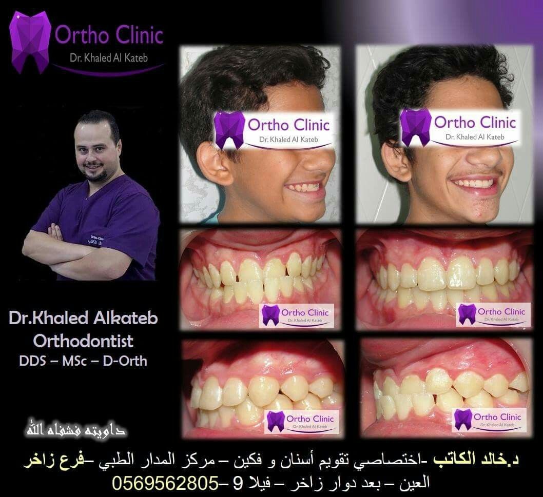 Pin By Khaled Alkateb On Kg Orthodontist Clinic Dds