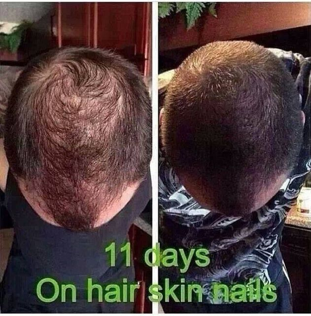 Results using It Works Hair, Skin, and Nails   DIY Beauty, Cleaning ...