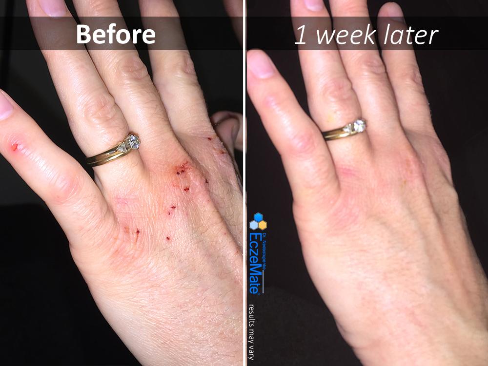 Angie has struggled with hand eczema (atopic dermatitis ...
