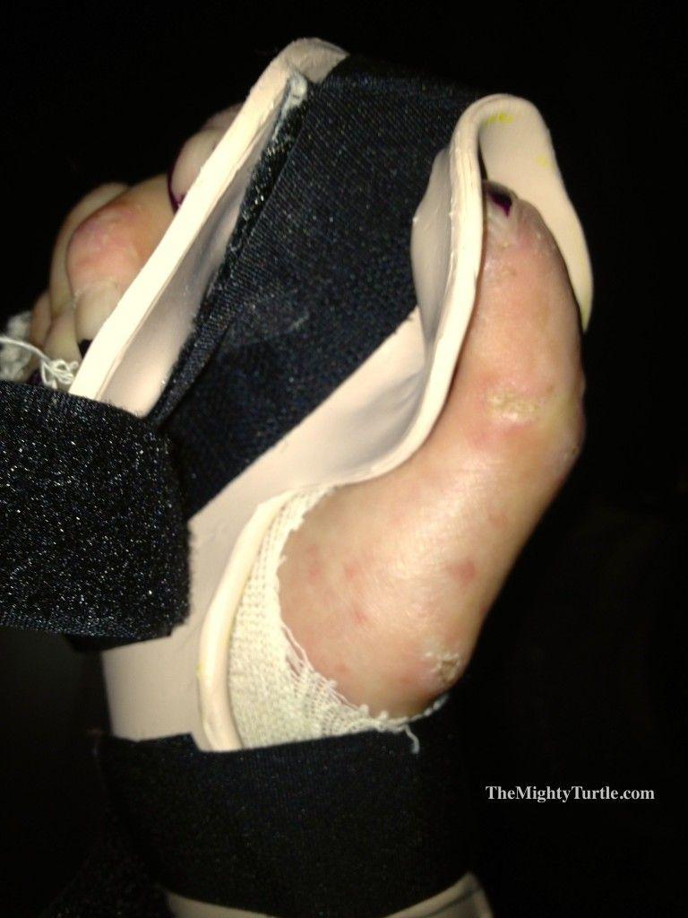 my right hand in splint designedmy occupational therapist. hands