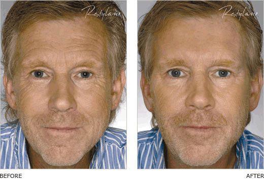Restylane Before and After | Injectable Cosmetics | Chemical peel