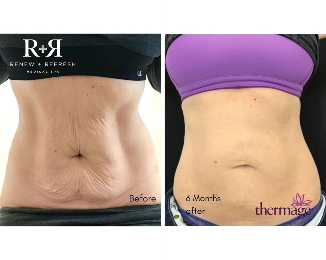 Renewrefreshmedicalspa Posted To Instagram Mummy Tummy Is A Real Thing Sometimes No Matter What We D Medical Spa Radio Frequency Skin Tightening Mummy Tummy