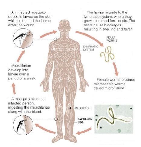 Filariasis Transmission Cycle Lymphedema Pinterest Lymphatic