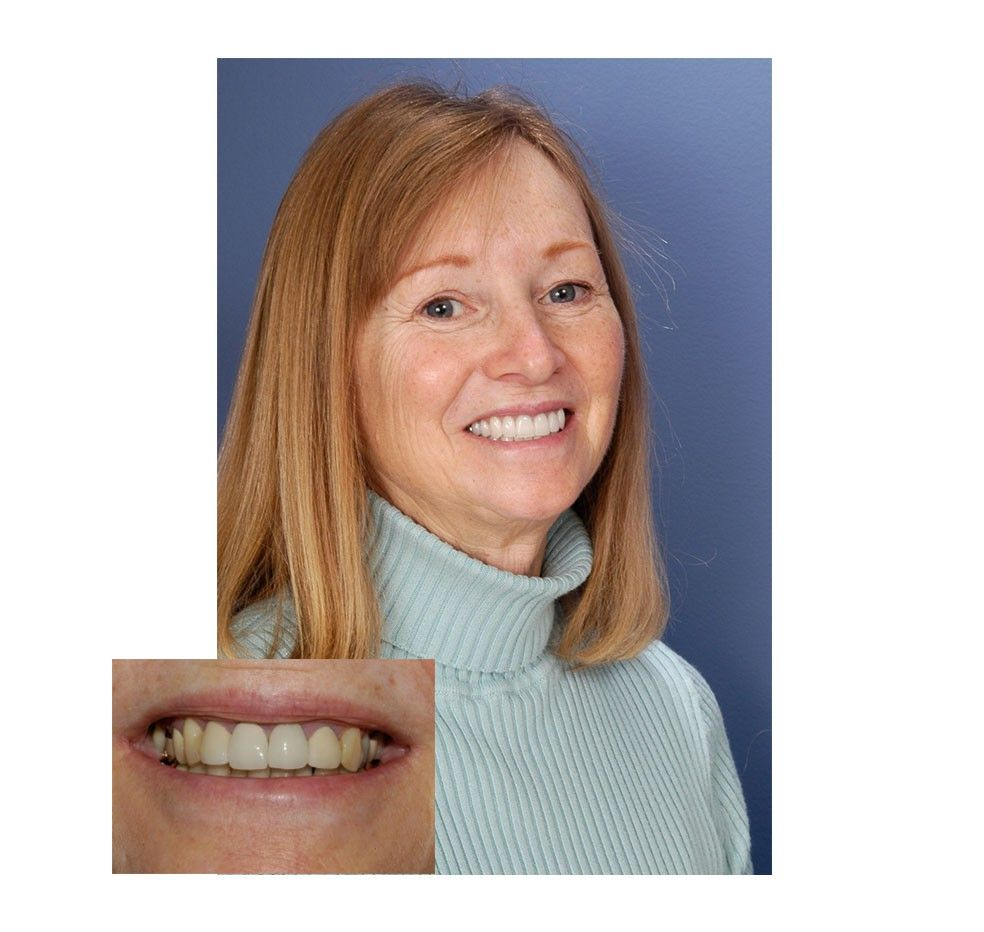 Cowardly Dental Crowns Before And After Galleries #toothfairyiscoming