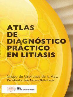Atlas de Diagnóstico Práctico en Litiasis