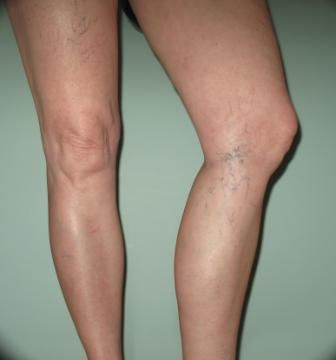 mustard oil for spider veins
