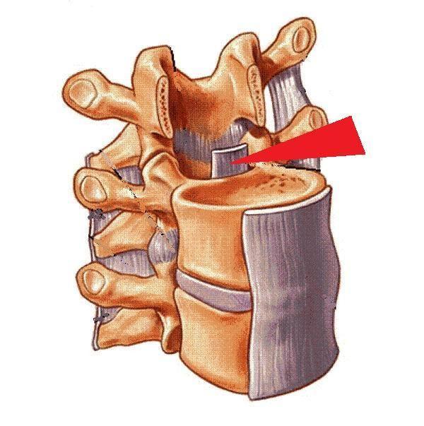 ligamentum longitudinale posterius - Google zoeken