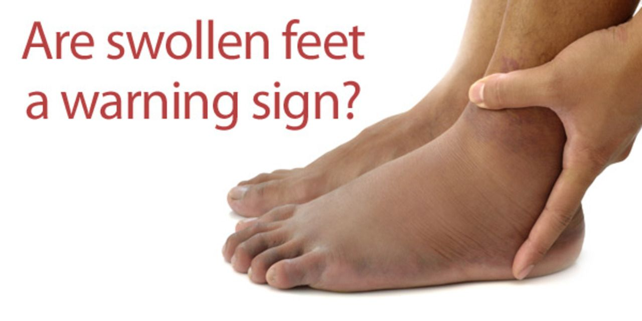 Swollen feet? Learn more about what causes temporary & occasional swelling.