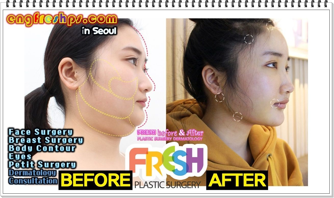 plastic surgery debate〖http://engfreshps〗: plastic surgery