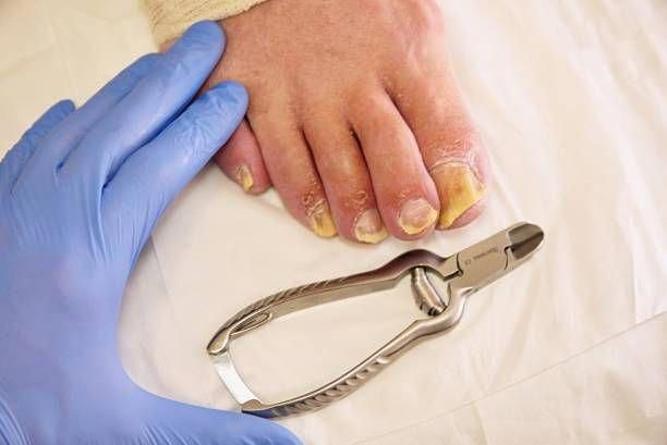 How Long Does It Take For Vicks To Cure Toenail Fungus-Treating Nail ...