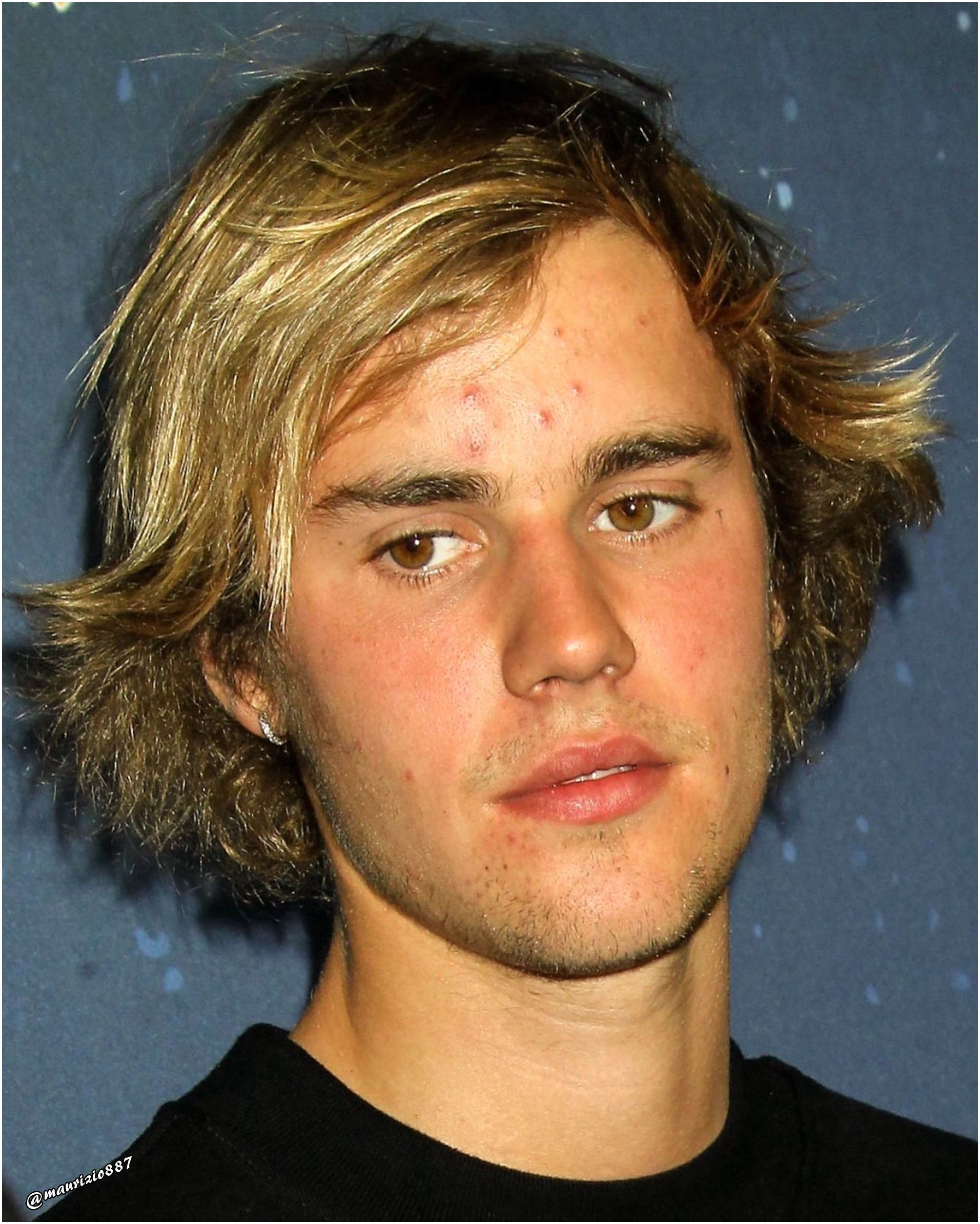 "justin bieber,2018 ""Pimples are in"" 