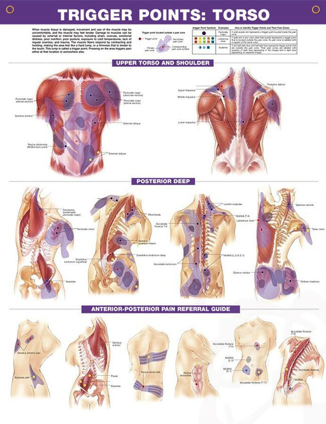 Trigger Points Set anatomy poster two posters show trigger point ...