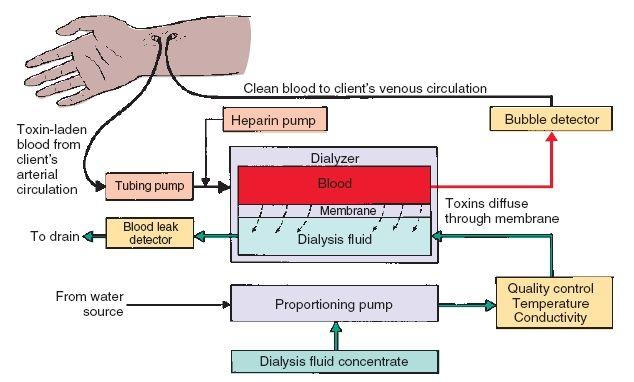 Diagram of dialysis electrical wiring diagram diagram of dialysis images gallery ccuart Images