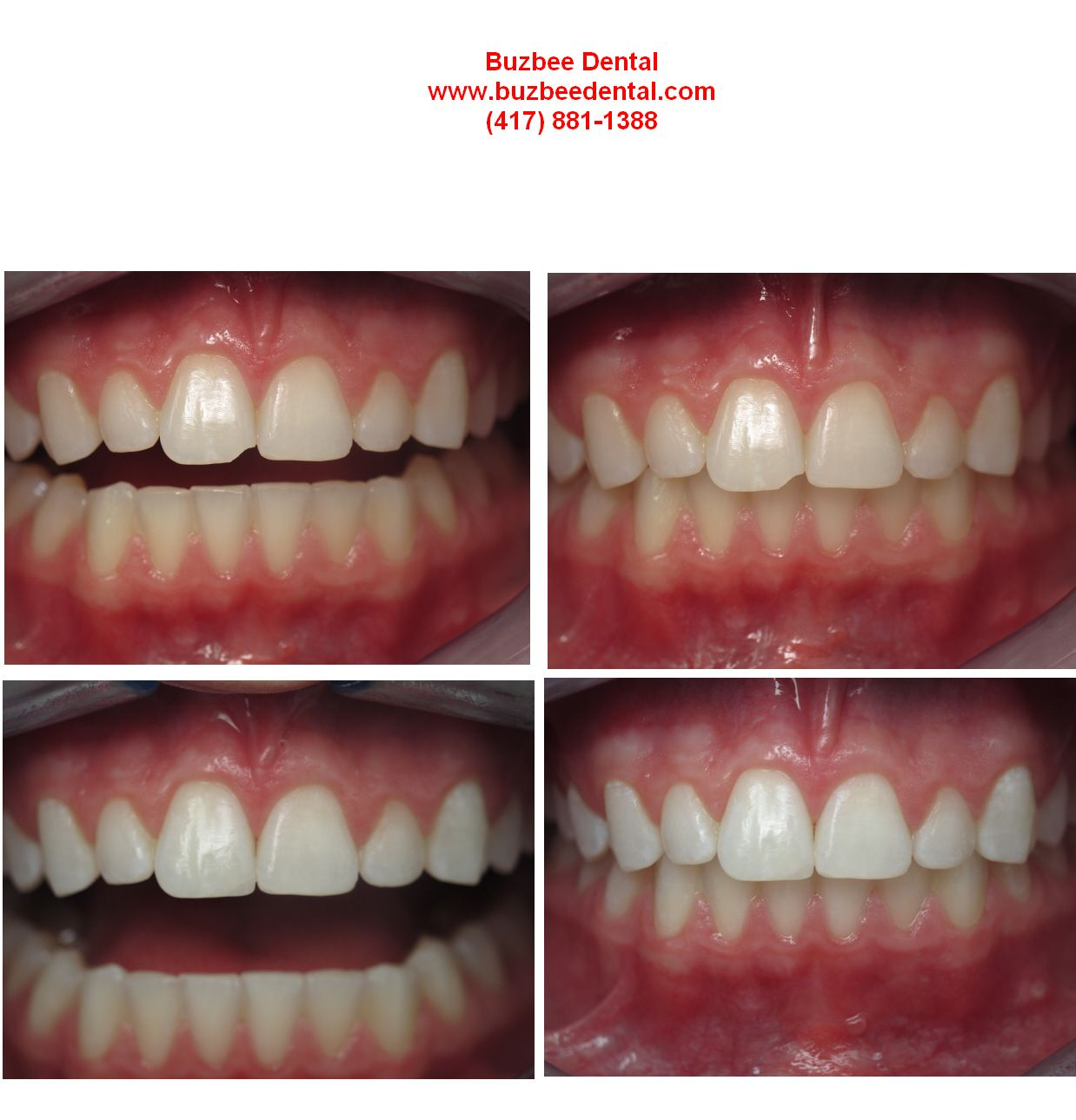 We Fixed The Chip On The Right Front Tooth 8 And Also Fixed The Minor Chips On The Patient S Left Lateral Toot Front Teeth Teeth Before And After Pictures