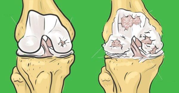 Co nejíst při bolestech kloubů
