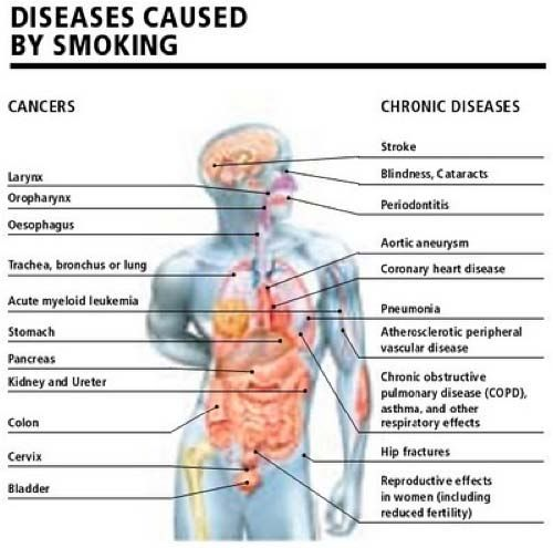 What are some diseases caused by smoking?