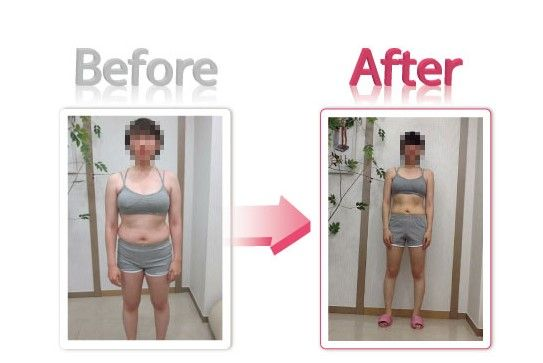Weight loss center palatine il image 8