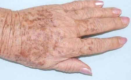 What Causes Old Age Spots Aimee S Skin Care Solutions Brown Age Spots Old Age Spots Age Spots