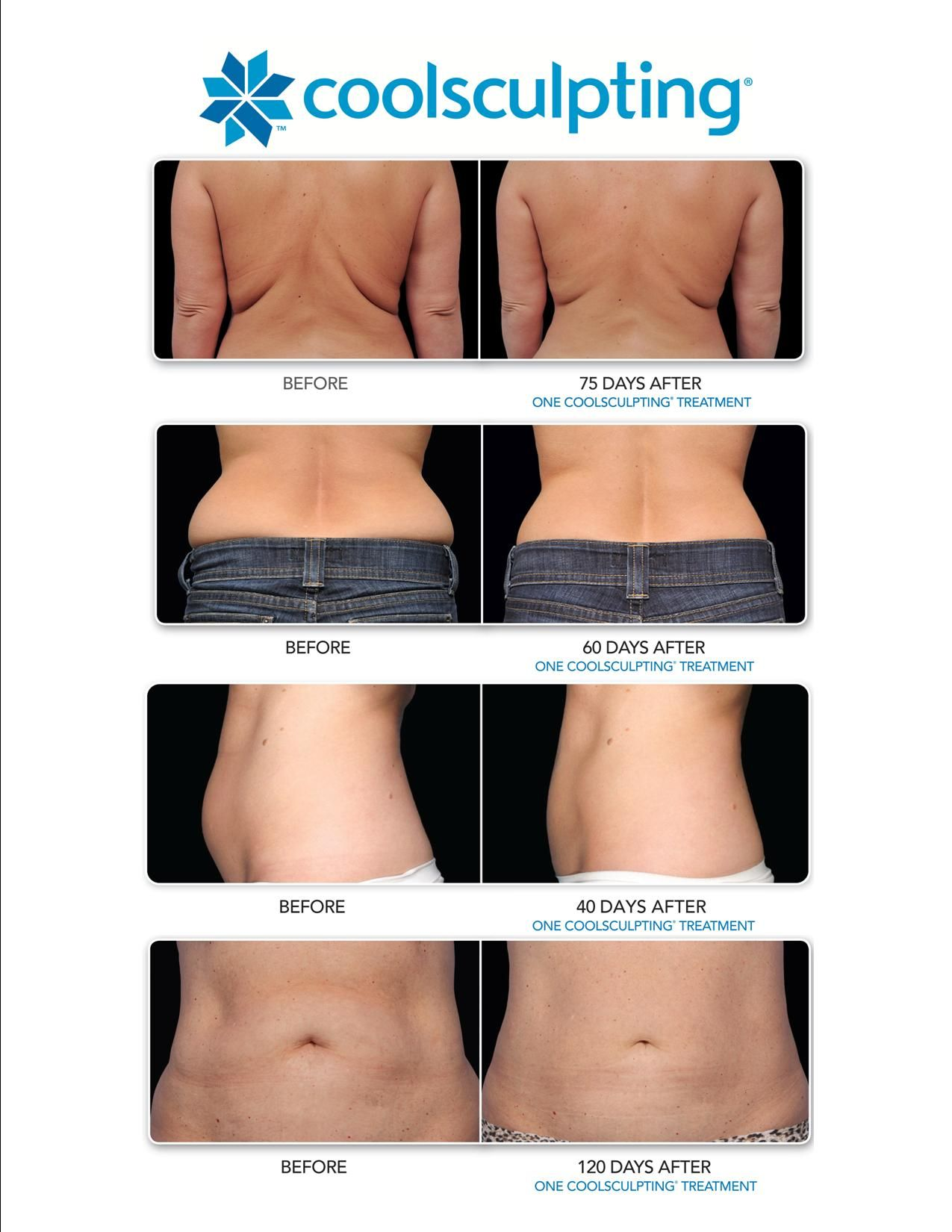 Pin On Body Contouring