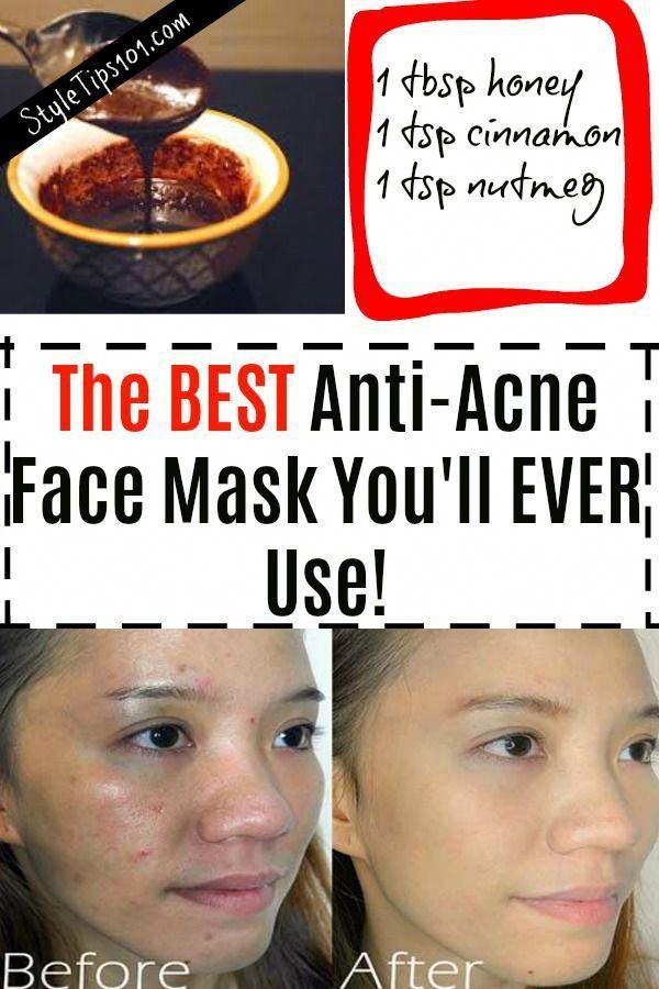 The BEST Anti Acne Face Mask You'll Ever Use! #antiacne