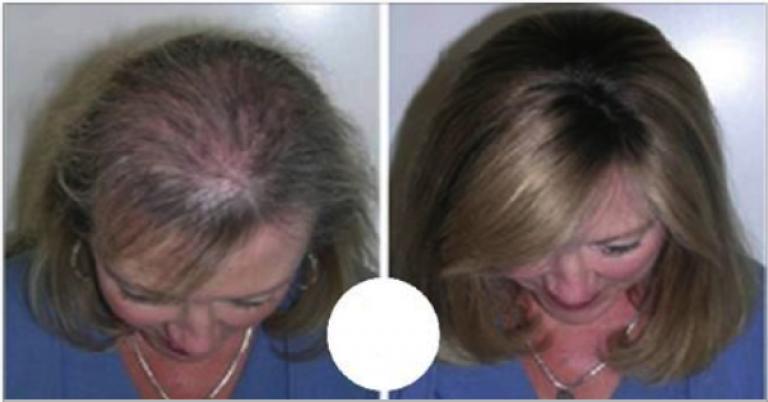 olio di ricino per ricrescita capelli